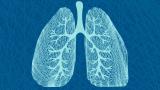 Fibrose cística: sintomas, causas e tratamento