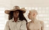 Albinismo: conceitos, causas, sintomas e tratamentos